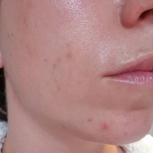 Chemical Peel After 1